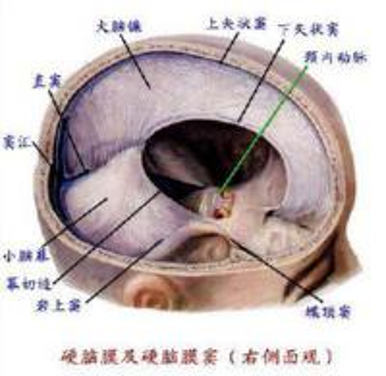 新生儿颅内出血的疗效标准