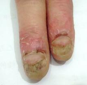 了解得了灰指甲去哪里治疗最好