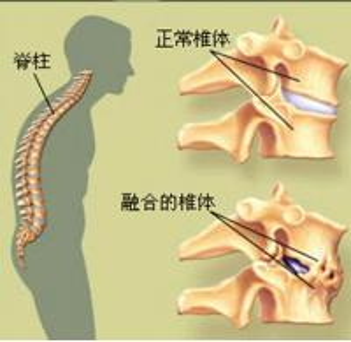 老年得了强直性脊柱炎如何治疗