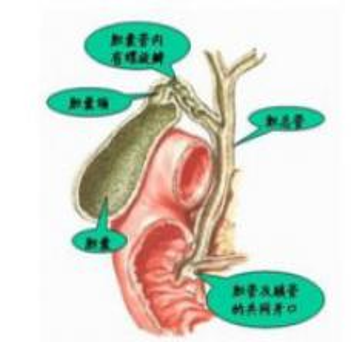 急性结石性胆囊炎疾病治疗