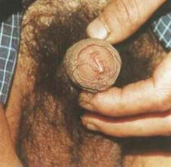 预防非淋性尿道炎要做好哪些工作