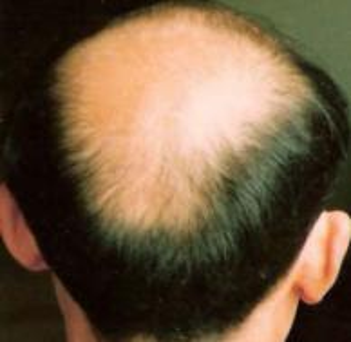 男性型秃发会遗传