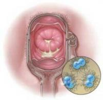 女性养生:夏季如何预防尿道炎