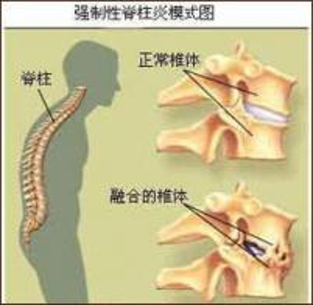 强直性脊柱炎治疗 的注意事项