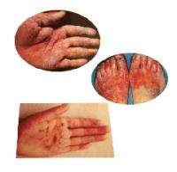 手足癣患者正确的护理方法