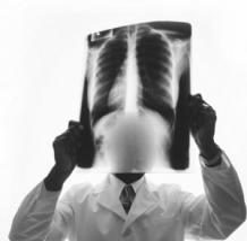 肺癌哪种治疗办法好呢