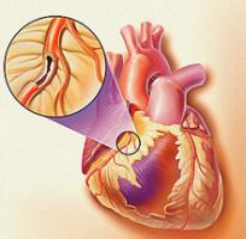 冠心病在发病初期会同时出现哪些并发症