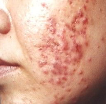 治疗痤疮的方法有哪些